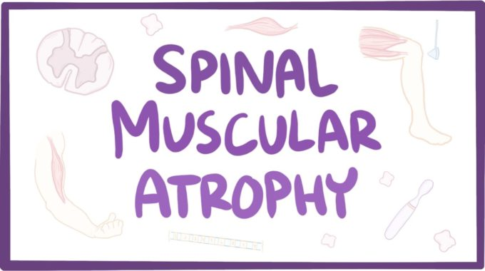 What Is Spinal Muscular Atrophy?